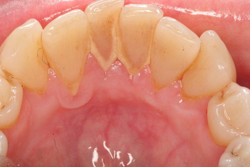 Mảng bám trên răng lâu ngày tạo thành cao răng, là nơi vi khuẩn trú ngụ và phát triển