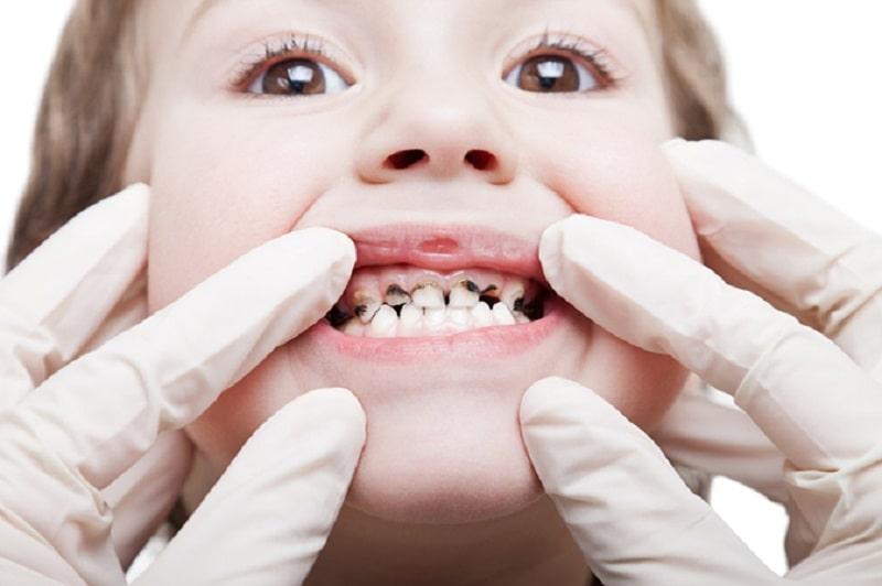 Sún răng có thể là cơ sở khiến trẻ bị sâu răng sau này