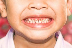 Bé bị sún răng phải làm sao: Nguyên nhân và cách điều trị hiệu quả