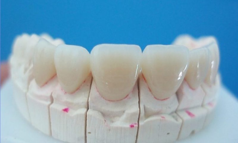 Hình ảnh răng sứ