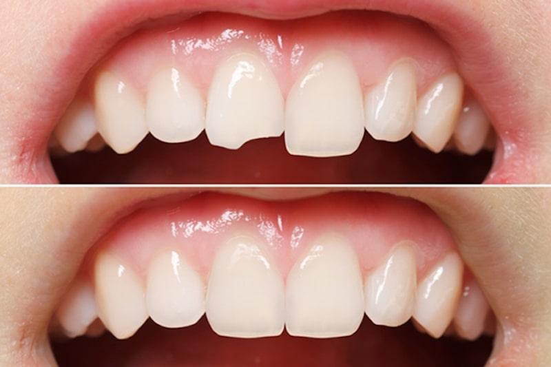 Trường hợp răng bị sâu hoặc vỡ mẻ nên thực hiện phương pháp này