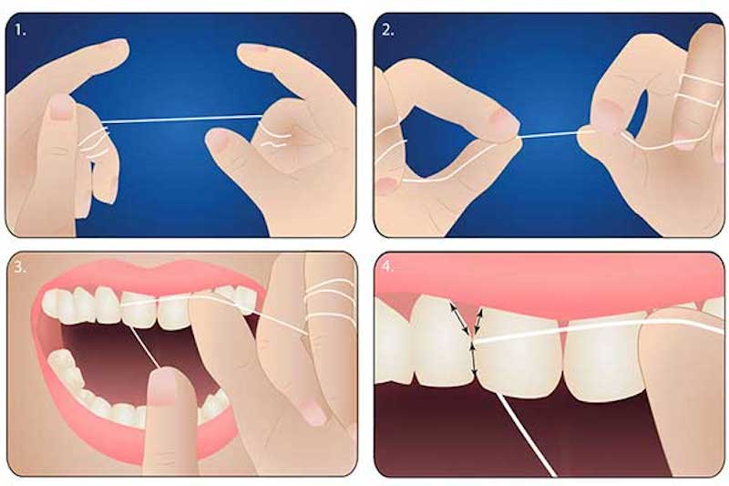 Dùng chỉ nha khoa để vệ sinh vùng kẽ răng, chân răng mỗi ngày