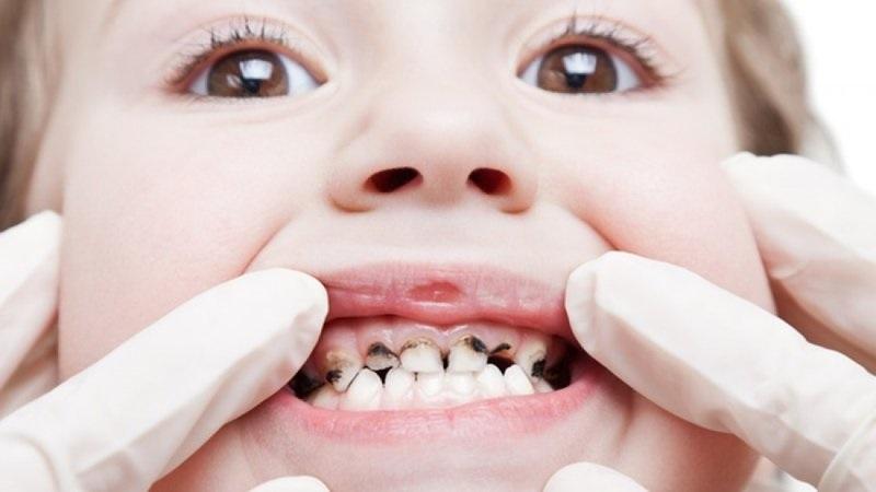 Có rất nhiều nguyên nhân dẫn tới tình trạng hôi miệng của trẻ. Chẳng hạn như sâu răng