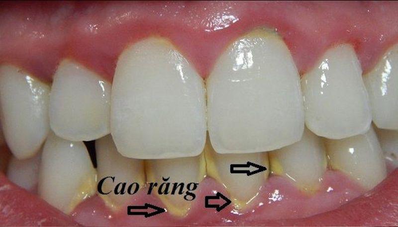 Vị trí vôi răng thường ở chỗ đọng phức tạp, bởi vậy việc thực hiện cần đảm bảo tỉ mỉ, nhẹ nhàng