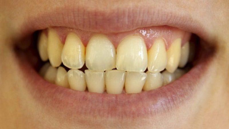 Phần này rất dễ bị ố xỉn màu do nước uống có màu, thức ăn bám trên răng,...