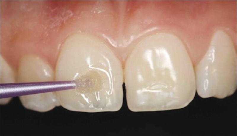 Mòn răng là một hiện tượng răng miệng dễ gặp khi lượng axit trong miệng tăng nhiều