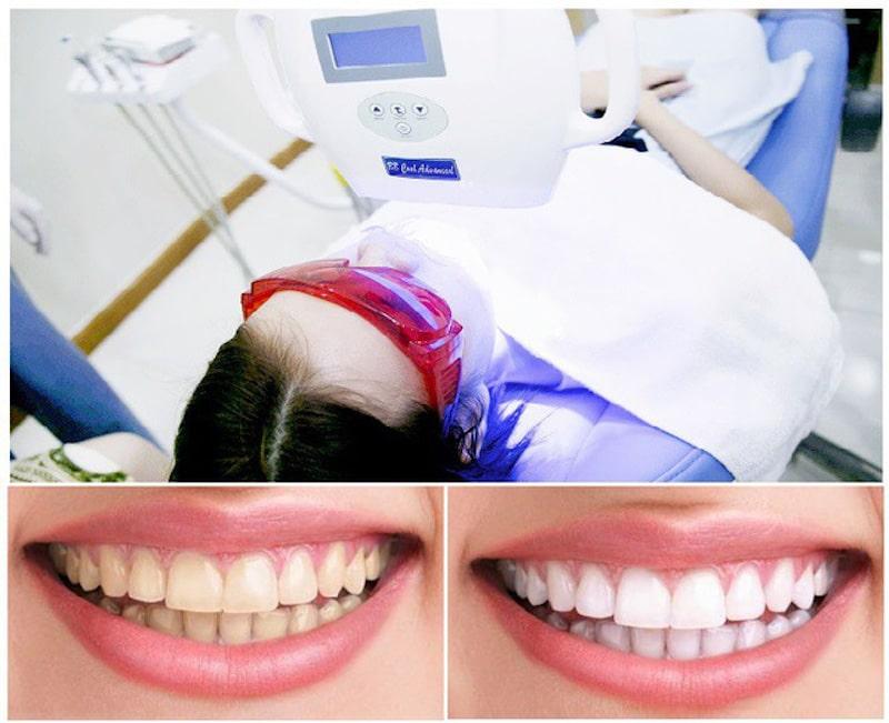 Làm trắng răng hay loại bỏ cao răng là một giải pháp để phục hồi men hư tổn
