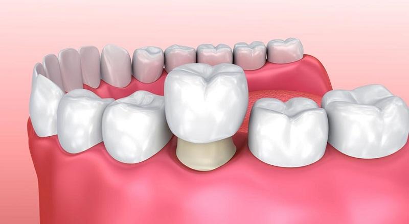 Hình thức bọc răng sứ thẩm mỹ