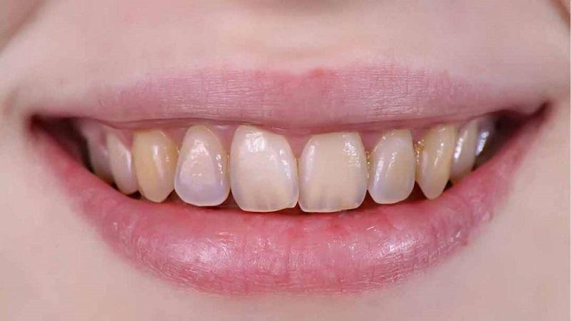 Mòn men răng khiến người bệnh gặp nhiều phiền toái trong cuộc sống