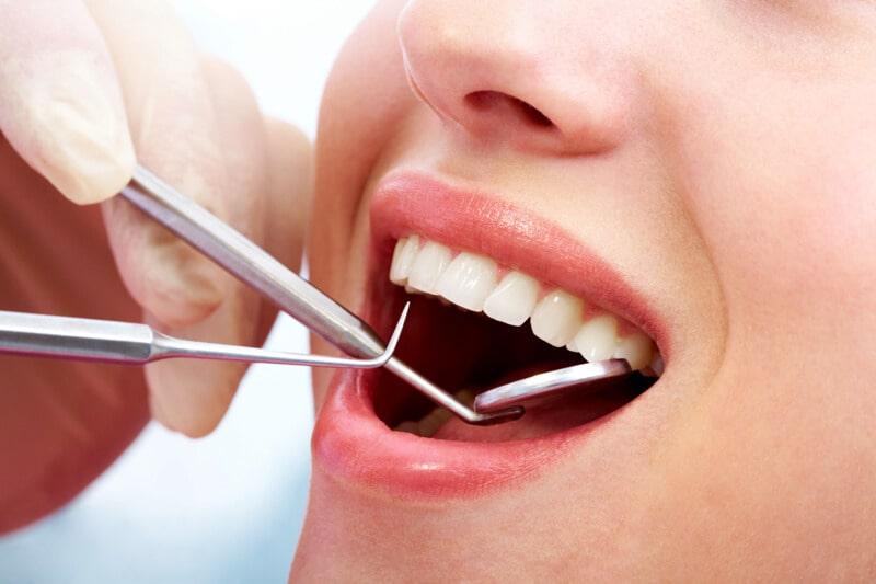 Trám răng không chỉ giúp làm đầy men răng mà còn đem lại tính thẩm mỹ cao