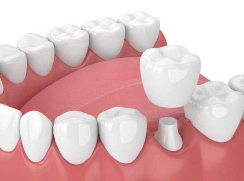 Bọc răng sứ được sử dụng trong những trường hợp mòn men răng nghiêm trọng