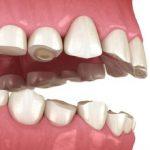Mòn men răng bắt đầu từ đâu và cách khắc phục