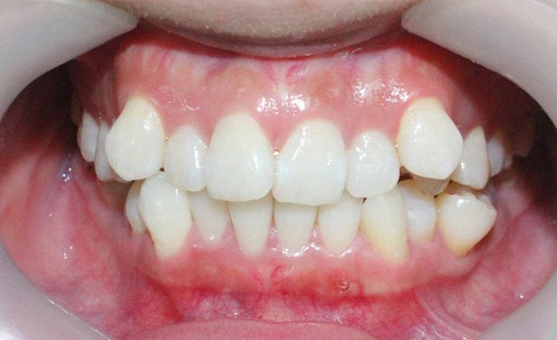 Cấu trúc răng mọc phức tạp gây khó khăn và làm kéo dài thời gian thực hiện