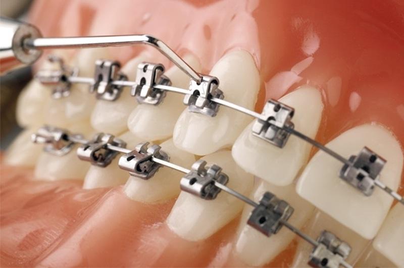 Mắc cài tự động giúp việc điều chỉnh dây cung siết răng trở nên dễ dàng