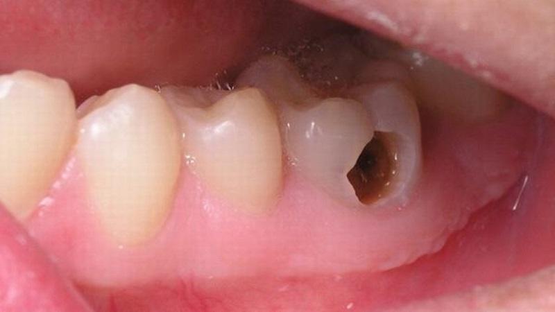 Sâu răng ảnh hưởng đến mọi mặt của cuộc sống hằng ngày
