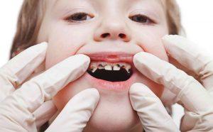 Sún răng là bệnh lý dễ gặp ở trẻ, khiến cho cấu trúc răng bị phá hủy nặng nề