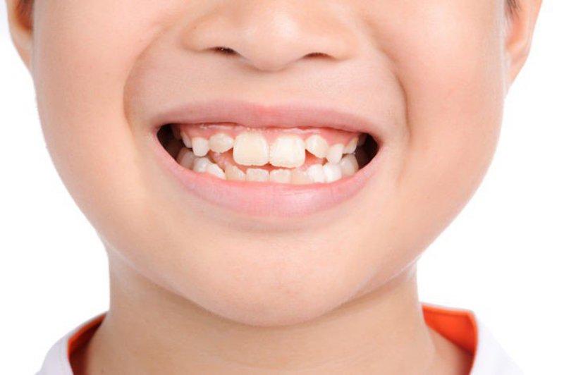Hậu quả của bệnh là tình trạng răng vĩnh viễn mọc lệch, mọc chen lấn nhau