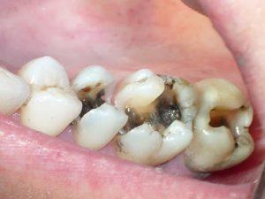 Trị sâu răng cho bé bằng phương pháp nào để đảm bảo an toàn