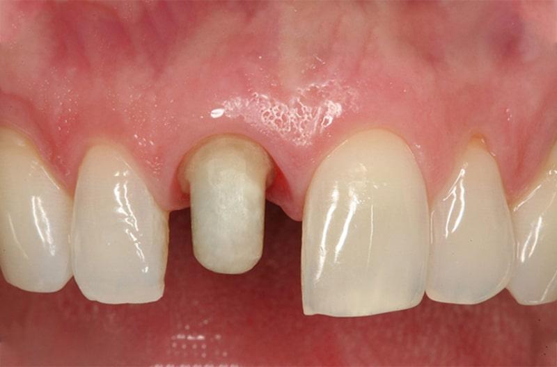 Răng thật bị mài đi nên những răng trụ có thể sẽ rất nhạy cảm với các yếu tố bên ngoài
