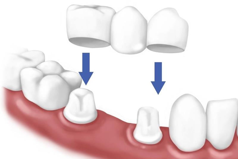Đây là phương pháp điều trị phổ biến, áp dụng khi người bệnh đã bị rụng không còn chân răng