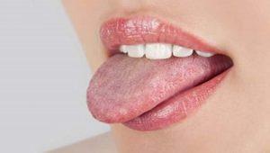 Tưa miệng khi mang thai: Những điều mẹ bầu cần biết