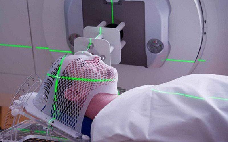 Xạ trị là phương pháp được chỉ định cho những bệnh nhân không thể thực hiện phẫu thuật cắt bỏ u