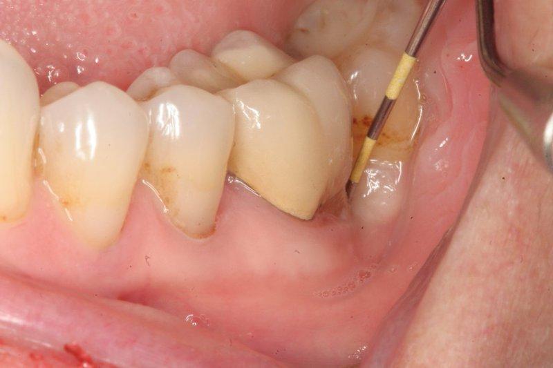 Viêm chân răng là bệnh lý răng miệng xảy ra rất phổ biến hiện nay