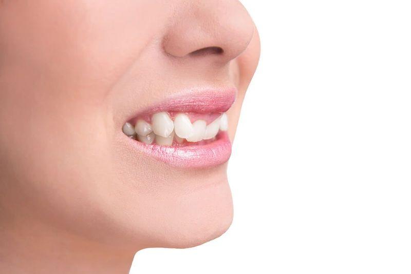 Răng mọc lệch, mọc chen chúc nhau là một trong số những nguyên nhân gây bệnh