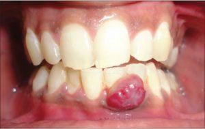 Viêm chân răng có mủ là gì? Nguyên nhân và cách điều trị