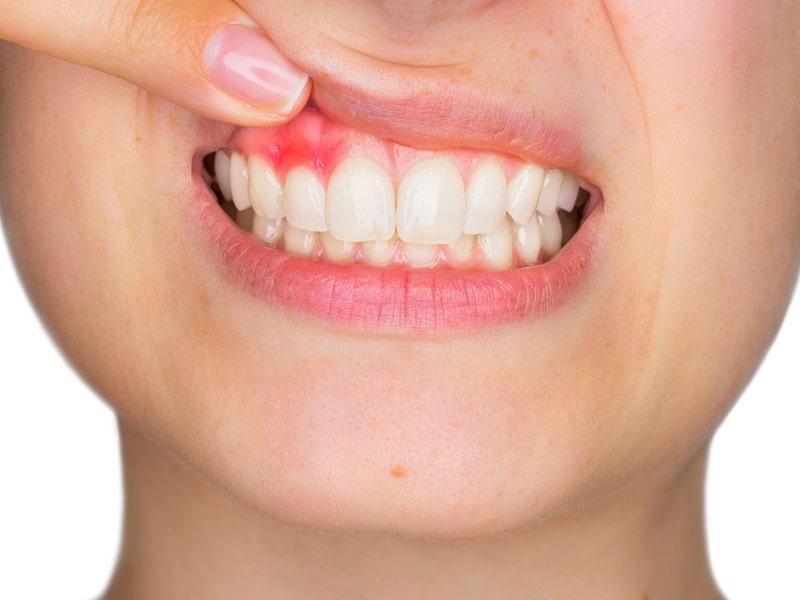 Viêm lợi là bệnh lý về răng miệng tương đối phổ biến hiện nay