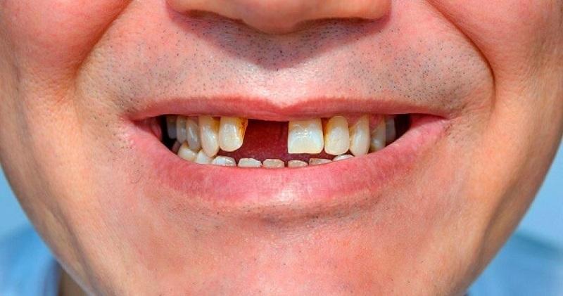 Bệnh viêm nha chu là nguyên nhân trực tiếp dẫn đến tình trạng mất răng