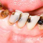Viêm tủy răng uống thuốc gì để điều trị triệt để?