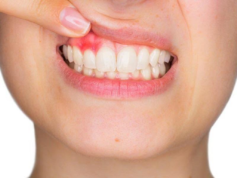 Viêm lợi là một trong những nguyên nhân thường thấy của chảy máu chân răng