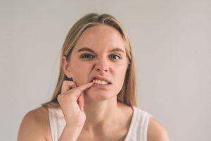 Hôi miệng chảy máu chân răng: Nguyên nhân và cách điều trị