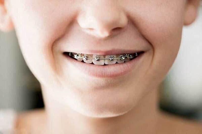 Răng hỗn hợp là giai đoạn niềng răng tốt nhất cho trẻ