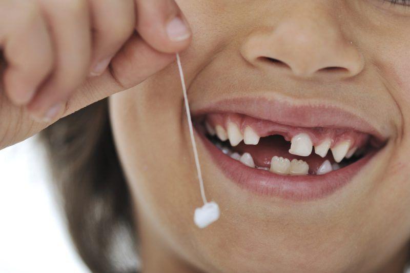 Nhổ răng sữa cho bé khi đã đến tuổi mọc răng vĩnh viễn