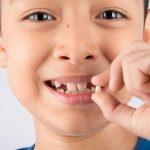 Cách nhổ răng sữa tại nhà