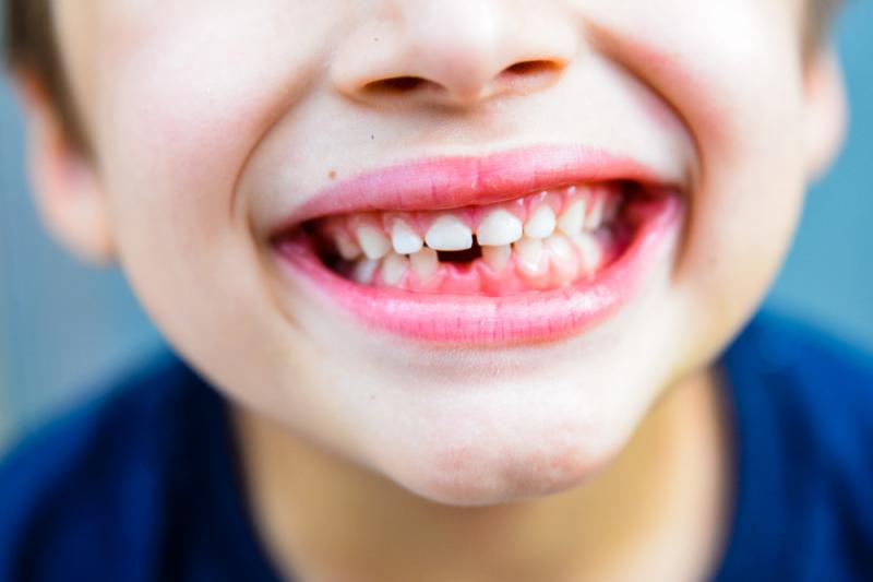 Thiếu mầm răng có thể là một trong những nguyên nhân khiến trẻ lâu mọc răng vĩnh viễn