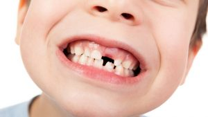 Nhổ răng sữa bao lâu mọc lại