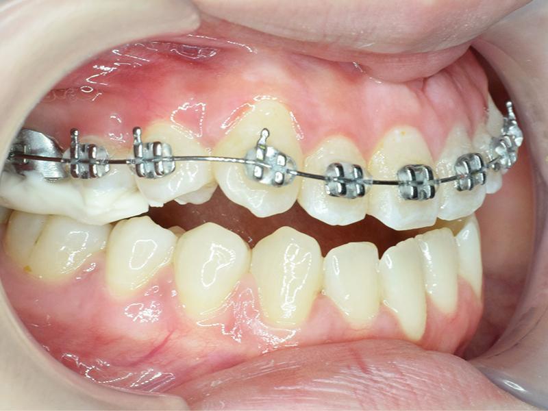 Niềng răng một hàm có thể được thực hiện