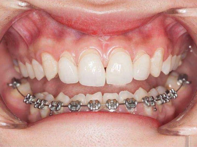 Hình thức niềng răng mắc cài