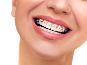 Chi phí niềng răng 1 hàm là bao nhiêu? Phụ thuộc những yếu tố nào?