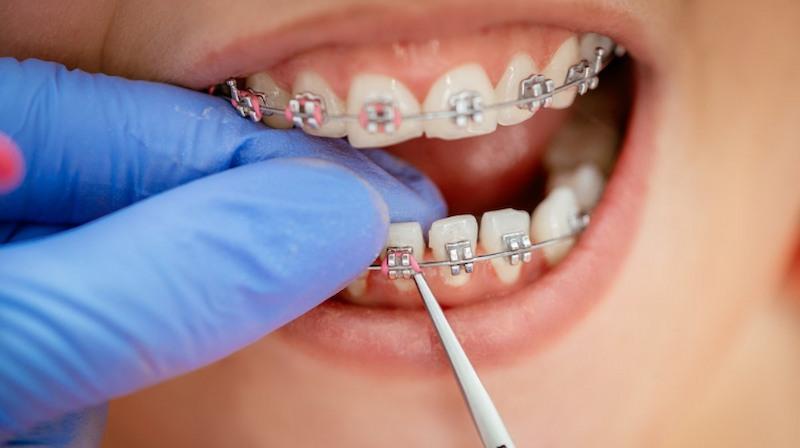 Chi phí niềng răng 2 hàm phụ thuộc vào nhiều yếu tố