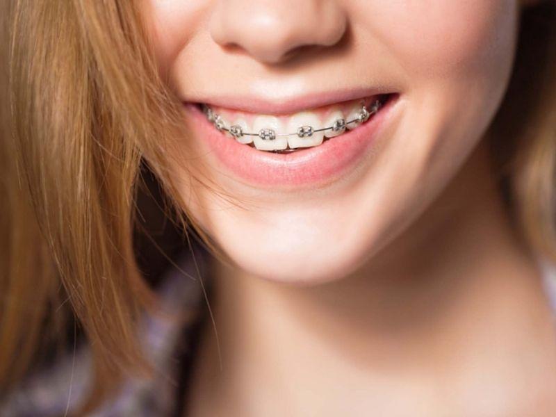 Trên thị trường hiện đang có nhiều loại niềng răng 2 hàm khác nhau