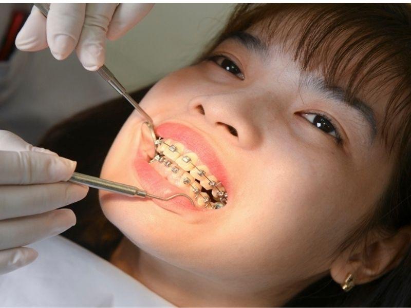 Bạn nên tới gặp bác sĩ nha khoa để được tư vấn lựa chọn loại niềng răng phù hợp và báo giá chi tiết