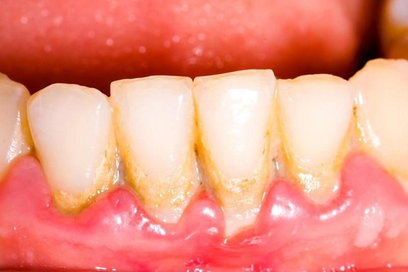 Vôi răng là nơi tích tụ rất nhiều vi khuẩn gây bệnh