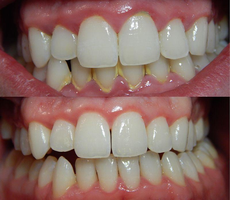 Người bệnh nên đi cạo vôi răng theo chỉ định từ bác sĩ, không lạm dụng