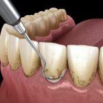 có nên lấy cao răng không