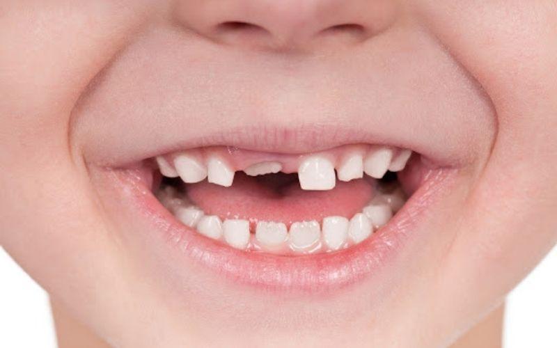 Khi nào nhổ răng sữa cho bé là vấn đề được nhiều phụ huynh quan tâm