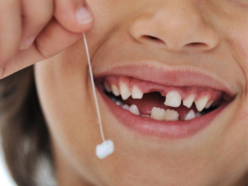 Độ tuổi thay răng sữa của trẻ thay đổi tùy thuộc vào từng vị trí